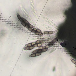 170203-chaetosphaerella-phaeostroma-asci-with-ascospores