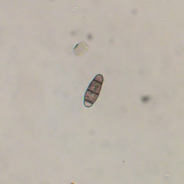 170203-chaetosphaerella-phaeostroma-conidia-x-400