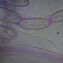 170205-fungi-spores-2